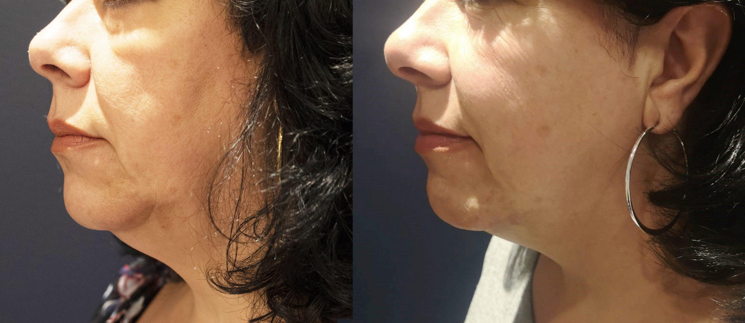Morpheus8 Skin Tightening 3 Months After